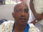 Actor Jeetu Varma Attacked Might Lose Sight Right Eye