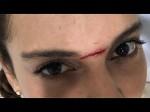 Kangana Ranaut Is Injured On Manikarnika Sets