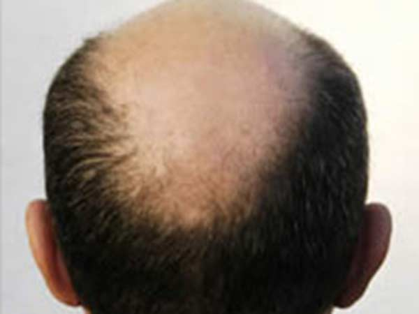 Top actor opts for hair transplantation