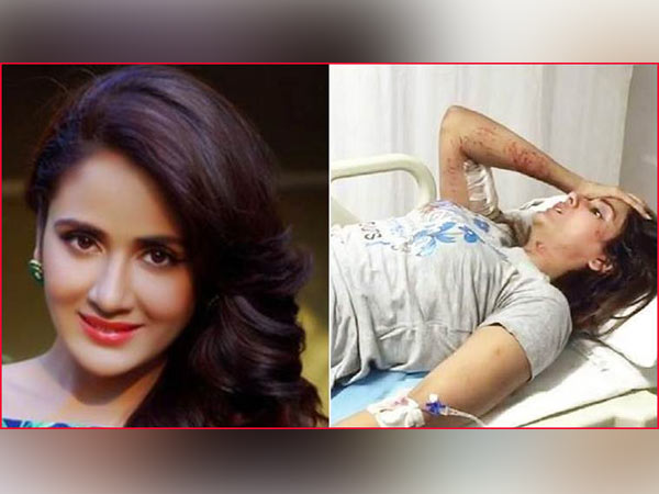 Parul Yadav savaged by stray dogs