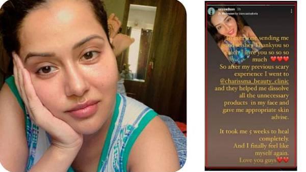 மீண்டும் புதிய ஸ்கின் கிளினிக் முகத்தில் வீக்கம் வடிந்தது இப்படிதான் மனம் திறந்த நடிகை ரைஸா வில்சன்!